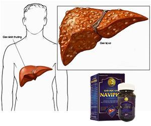 Giải độc gan Navipha từ Cà gai leo