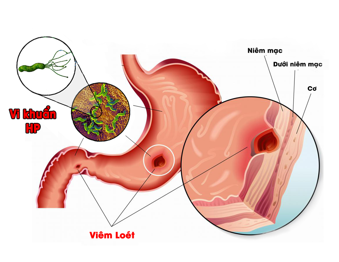 5 cách chữa đau dạ dày bạn nên biết